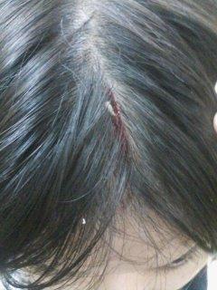 頭から血を流しました